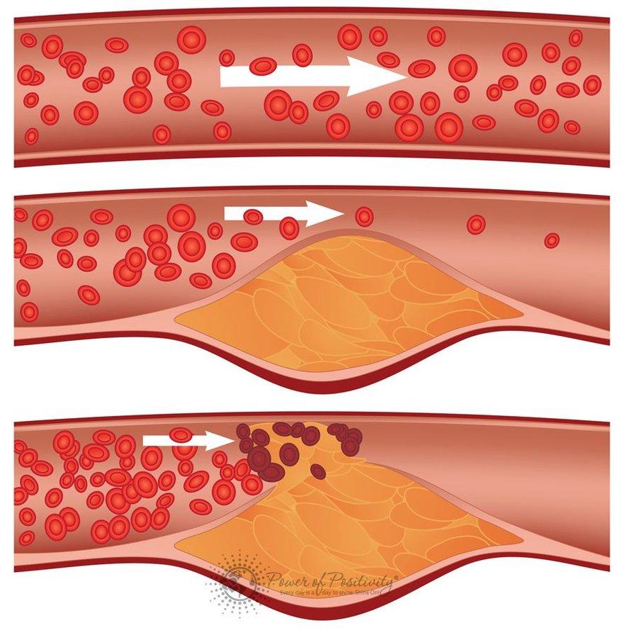Zamašene arterije lahko vodijo celo do življenjsko nevarnih zapletov, med njimi do srčnega infarkta, kapi in srčno-žilnih bolezni. Z