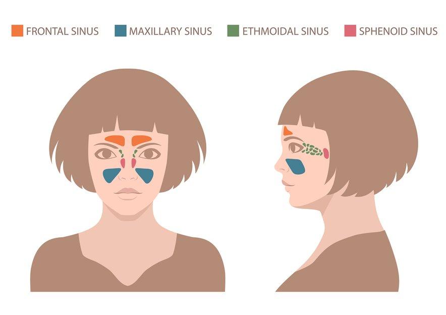 Kronično vnetje sinusov prinaša hude glavobole, zamašene dihalne poti in slabo počutje.