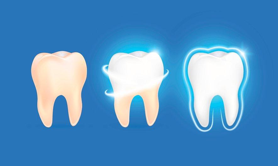 Katera zobna pasta je najboljša?