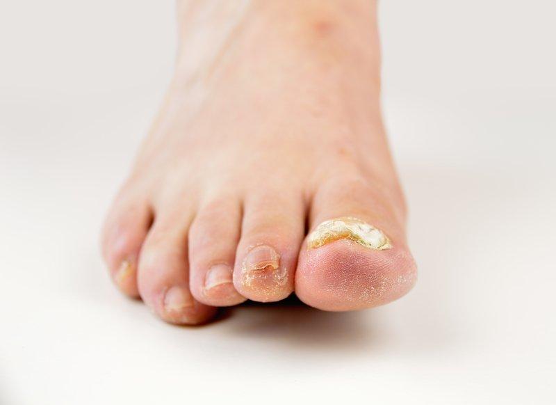 Pomembno je, da se glivično okužbo nohtov zaustavi, saj se lahko razširi še na preostale nohte.