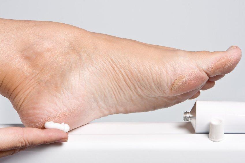 Za en dan nohte na nogah in rokah osvobodite težkega laka.