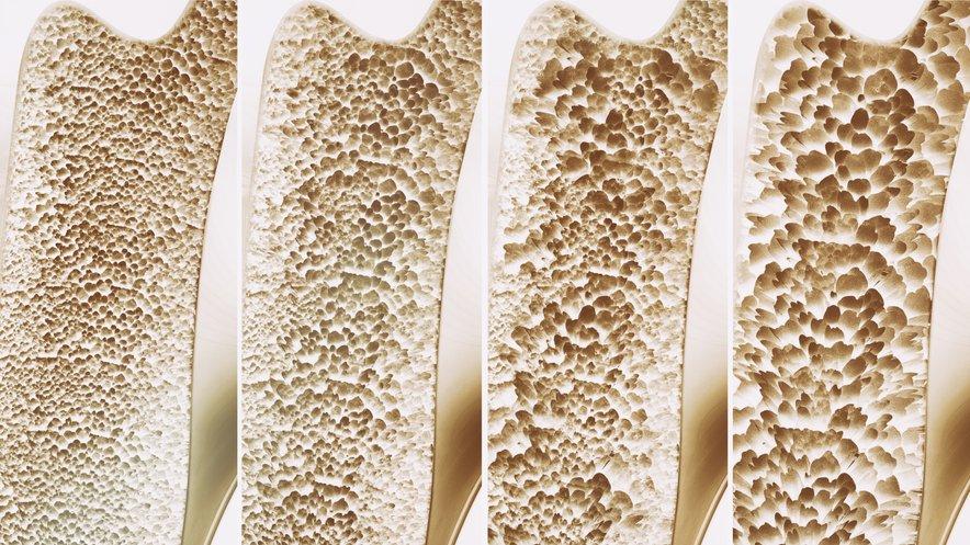 Hormoni lahko povzročijo celo izgubljanje kostne gostote in osteoporozni zlom.