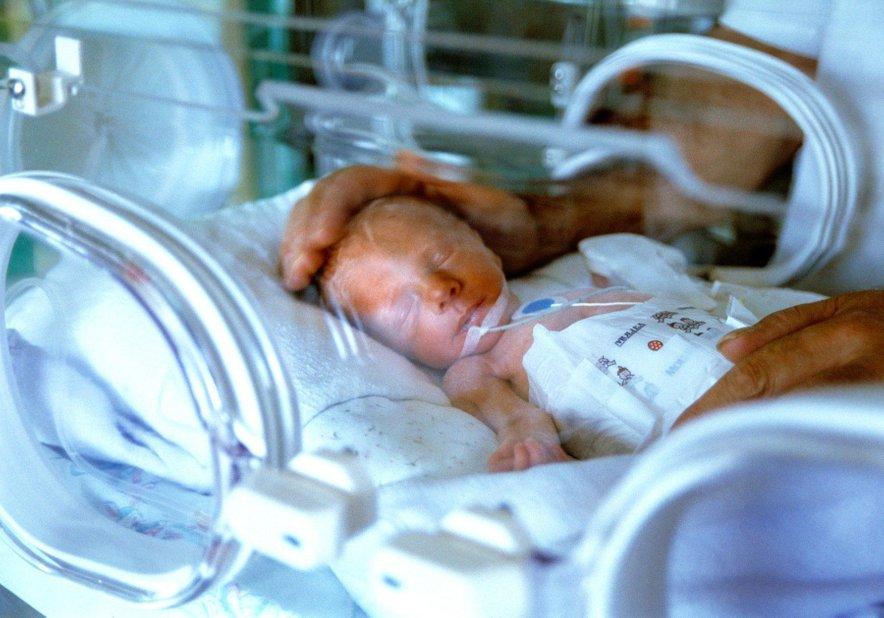 Povprečna teža pri rojstvu v 28. tednu je 1000 gramov, v 32. tednu pa 1750 gramov.