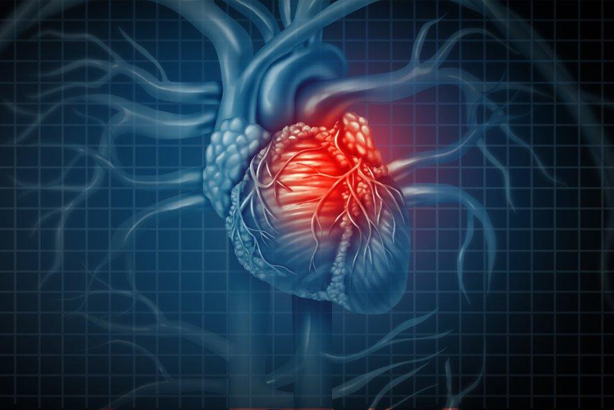 Največje je bilo tveganje za prezgodnjo smrt zaradi težav s srcem in ožiljem.