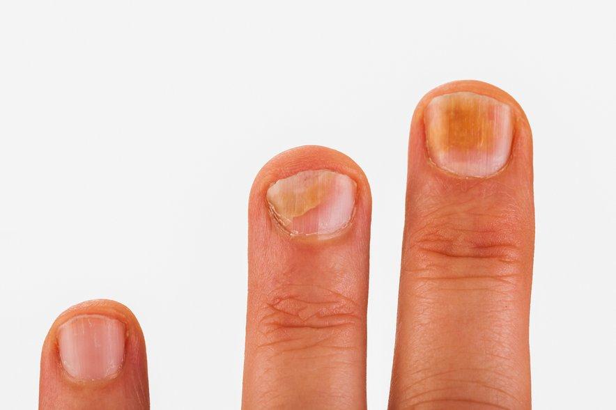 Pojav majhnih krogcev na nohtih, ki se na površju luščijo, najbrž pomeni glivično okužbo.