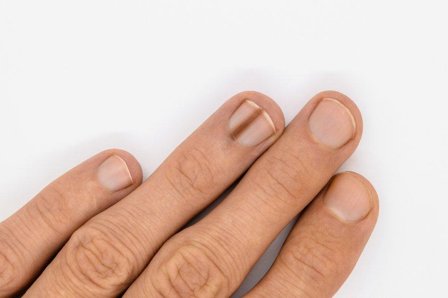 Nohtni melanom je rak, ki se lahko pojavi na tkivu nohtne posteljice.