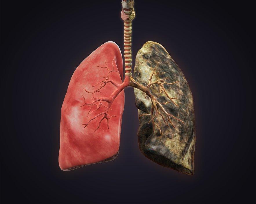 Vsako leto raka pljuč v Sloveniji odkrijejo pri okoli 1200 ljudeh, umre pa jih okoli 1100.
