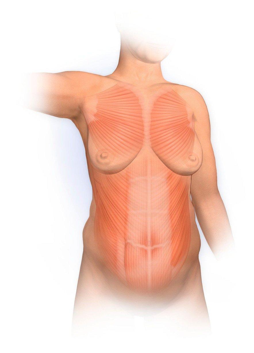 Trebuh je treba gledati kot celoto. Ženska ima lahko razmik vzdolž bele črte dva, tri prste, medtem pa ima zelo raztegnjene mišice po dolžini.