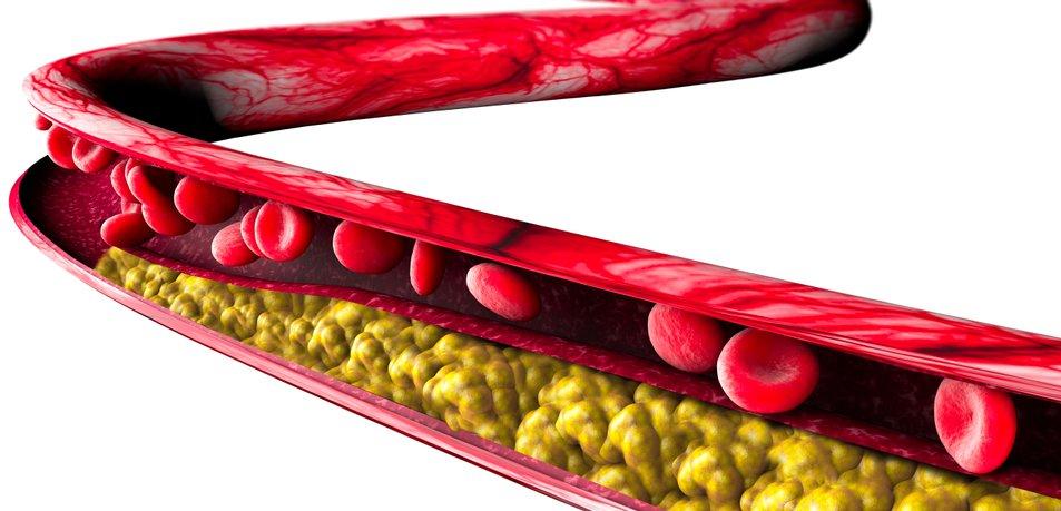 Malica, ki ščiti srce, pomaga pri povišanem holesterolu