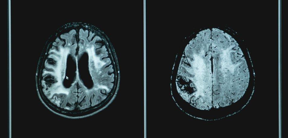 Lahko ta navada res prepreči demenco?