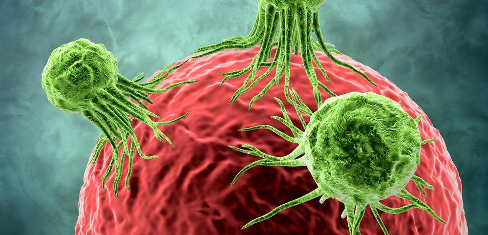 Znate preprečiti četrtega najpogostejšega raka?