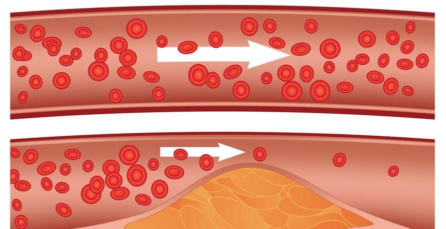 5 znakov, da imate zamašene arterije
