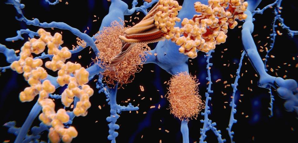 Kaj poveča tveganje za zgodnjo Azheimerjevo bolezen?